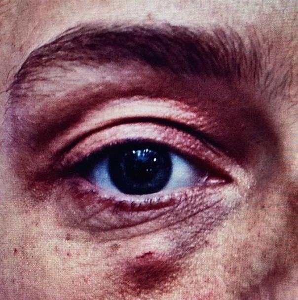 """Modeling is dangerous #blackeye @alastairmckimmstylist @hannah_murray1"" <br><br> Instagram: @dotwillow </strong>"